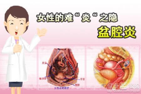 卵巢巧克力囊肿是什么原因引起的