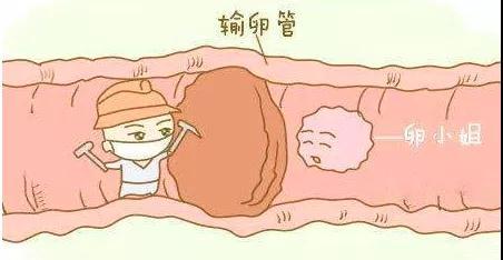 子宫内膜异位症早期症状